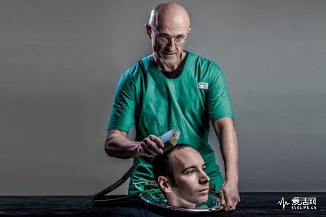 Sergio-Canavero-head-transplant-on-Valery-Spiridonov